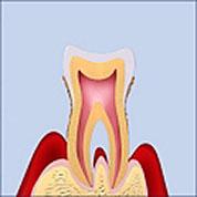 歯周病の進行P1からP4