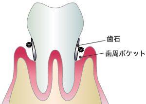 歯石付着イラスト 側面から