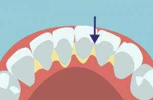 歯石イラスト